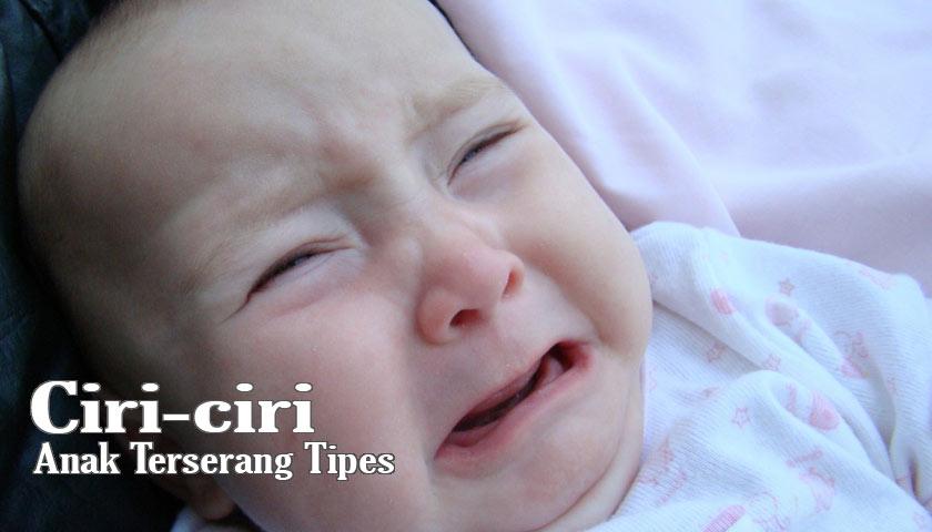 ciri ciri gejala tipes pada anak