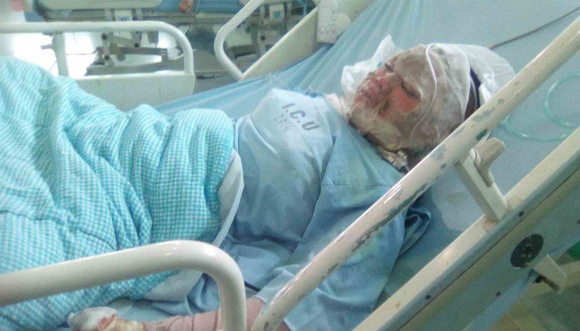 Tega Bakar Pacar, Iwan Kincit Terkapar Ditembak Polisi