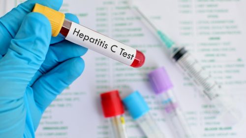 Jutaan Penderita Hepatitis C tak Sadar dengan Penyakitnya