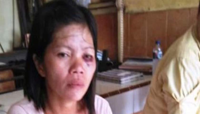 Istri Dianiaya Suami, Lisda Sirait Lapor Polisi