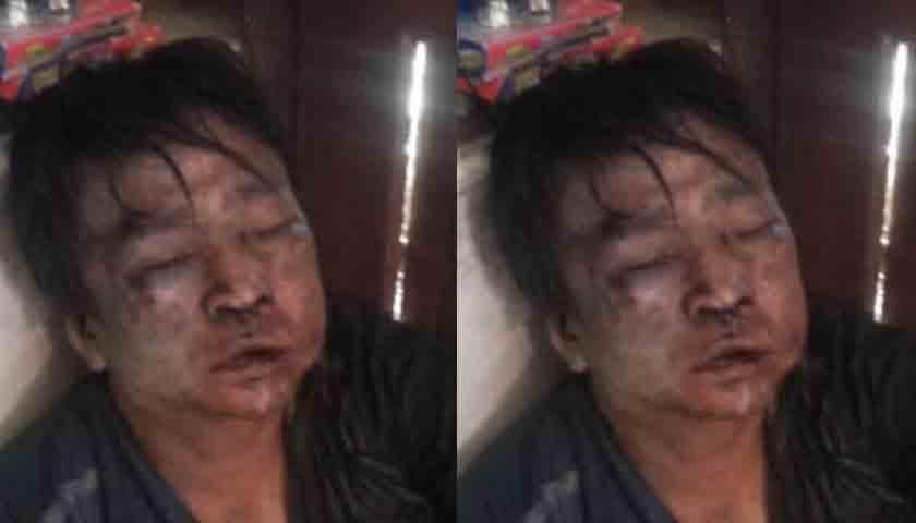 Pelaku Jambret Ponsel Hampir Tewas Diamuk Warga, Sepedamotor Dibakar