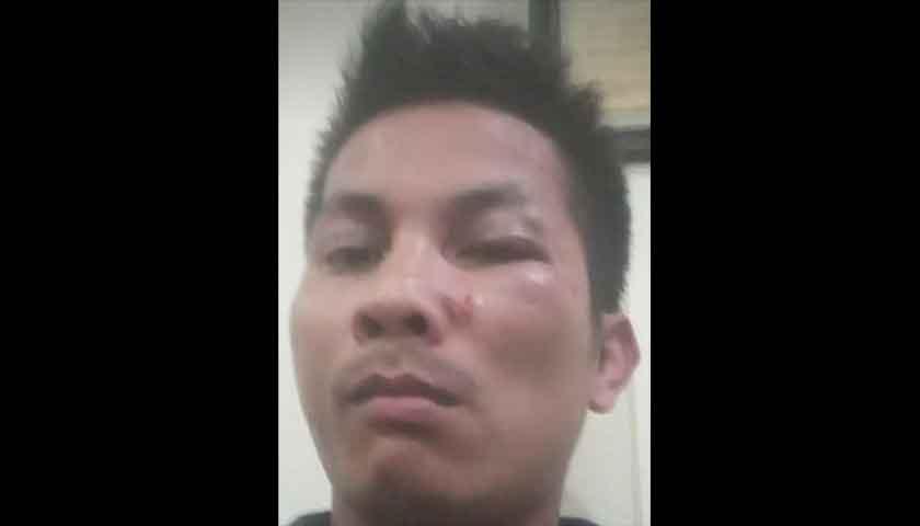 Wartawan di Medan 'Diculik' dan Dianiaya Oknum OKP